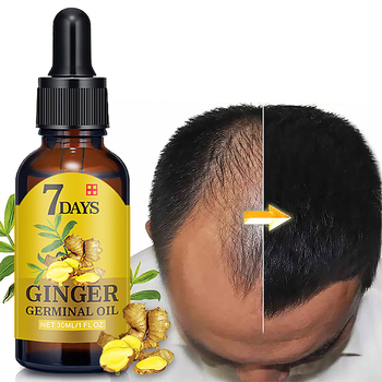 Wholesale 30ml Ginger Oil 7 Days Hair Growth Essential Oil For Hair Loss Treatment Regrowth Serum