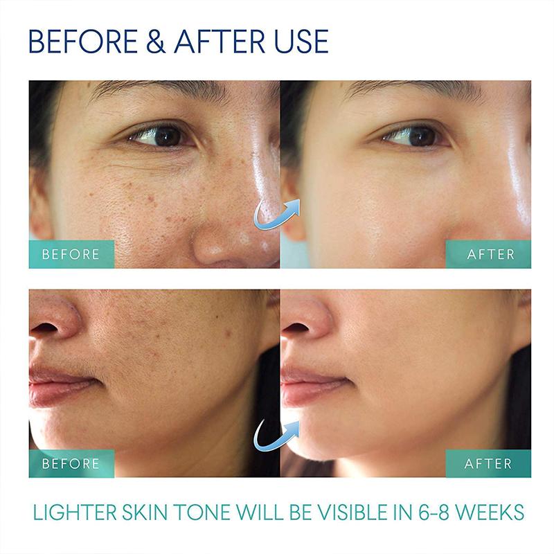 Ingrown Loss Treatment Dark Spot Corrector After Shave Repair Serum