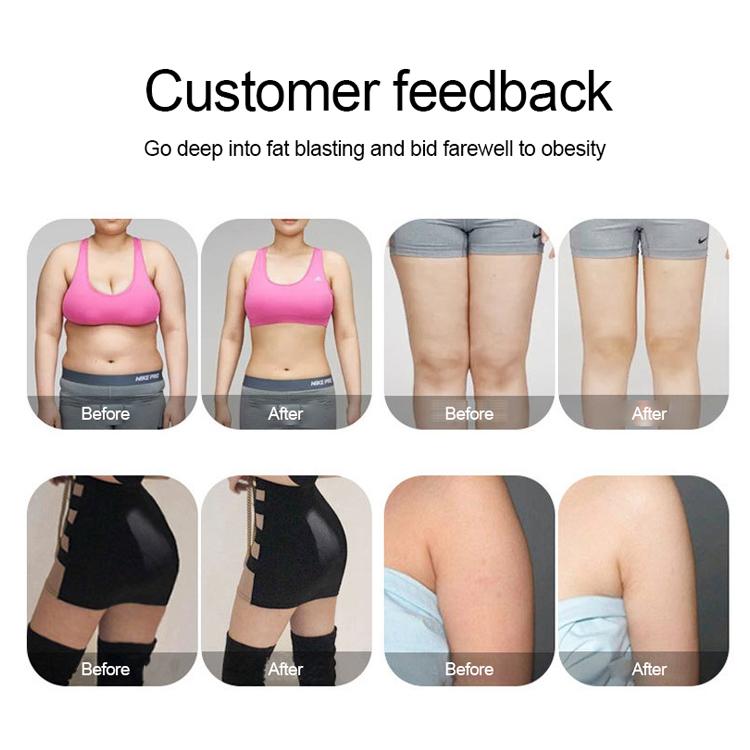 Desktop slimming body shaping machine ems weight loss reduction machine