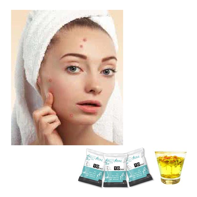 100% Natural Healthy Flower Tea Anti-constipation Anti-acne Tea Moringa Tea - 4uTea   4uTea.com