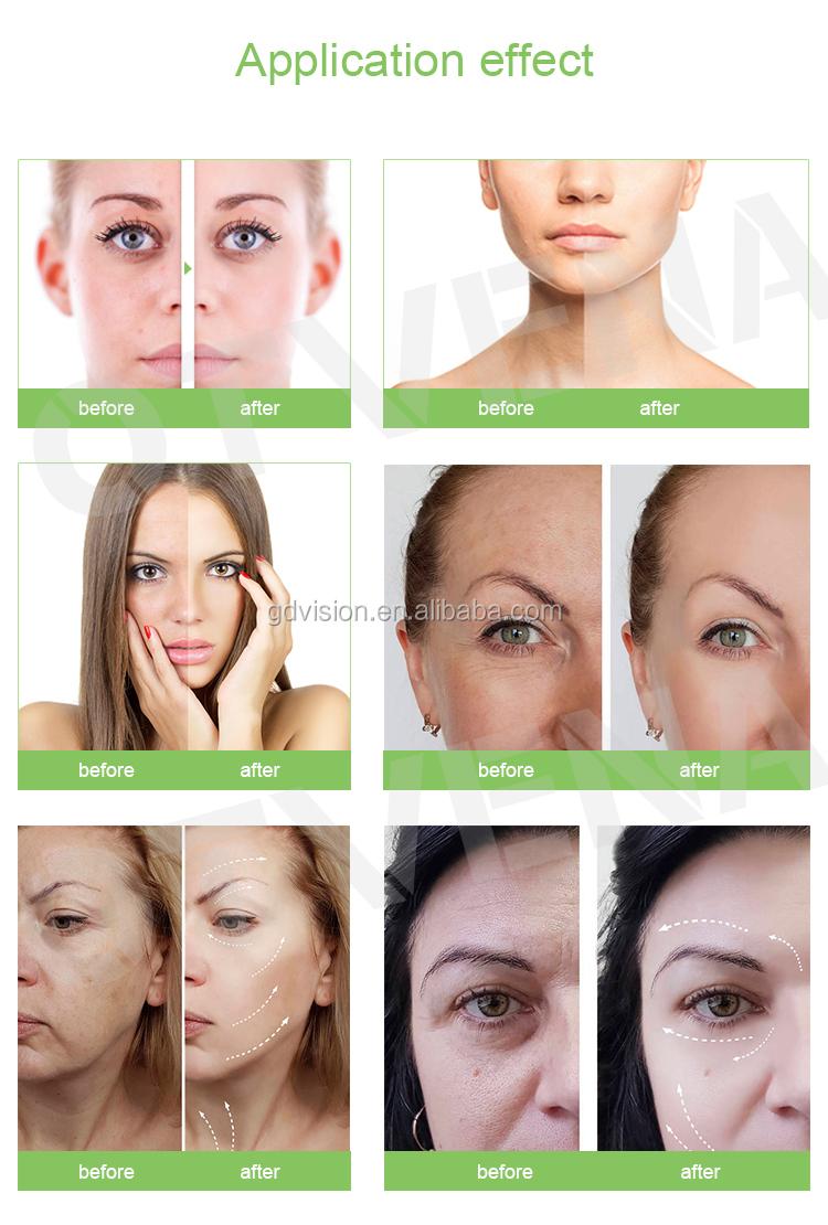 private label beauty product korean cosmetics kojic acid lightening moisturizer whitening soap