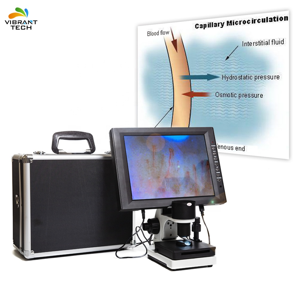 Big Video Displayer микроциркуляция крови тест здоровья анализатор