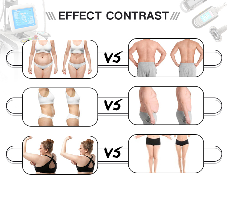 Одобренный CE крио крутой для похудения персональный потеря веса 4 крио 360 ручки для коррекции фигуры машина для похудения криолиполиз