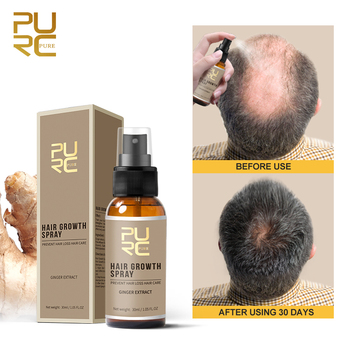 Hair Care Products Fast Hair Regrowth Organic Oil Serum Anti Loss Private Label Instant Natural Ginger Hair Growth Spray