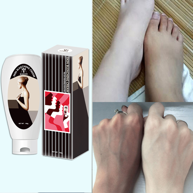 Антивозрастной Осветляющий отбеливающий крем для кожи, сильные эффективные ингредиенты, органический отбеливающий крем для кожи лица