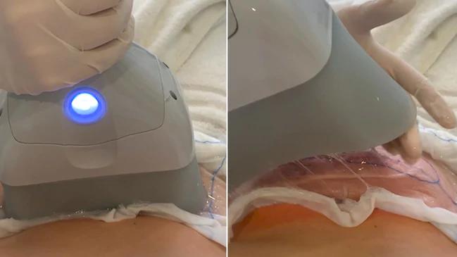 2021 Cryo 360 lipo замораживание жира система удаления криолиполиза для похудения охлаждение тела контурная машина