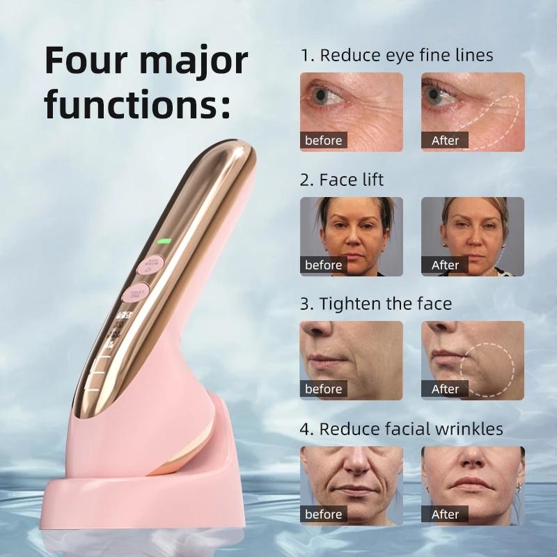 Мини-прибор KONKA для ухода за кожей, радиочастотный массажер для лица с функцией электропорации, EMS, мезотерапия, светодиодный фотонный прибор для удаления морщин