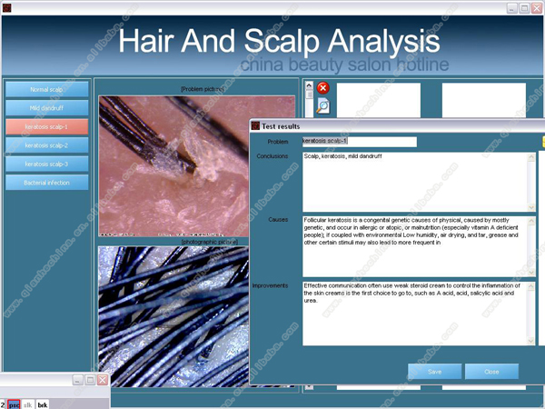 Professional touch screen hair analyzer equipment with software