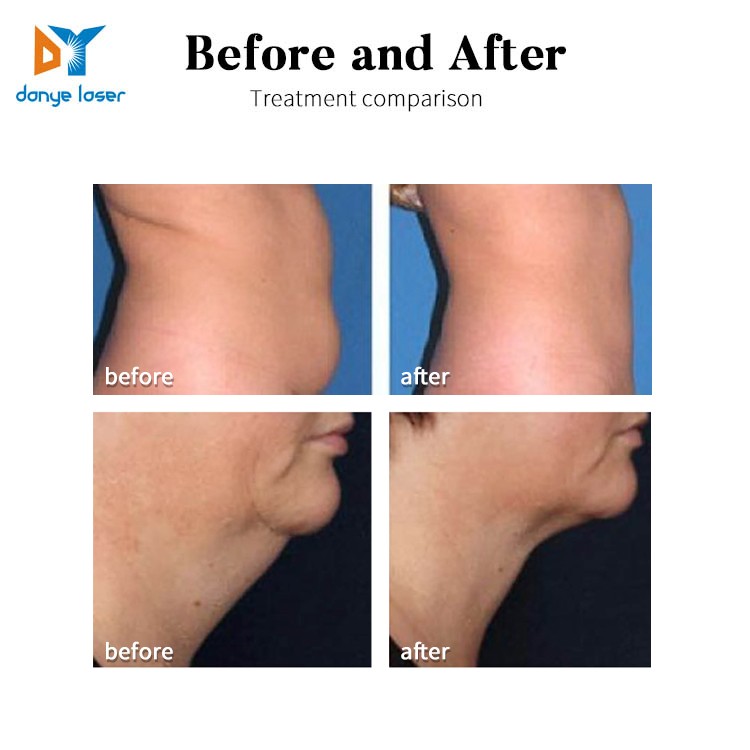 CE approved fat freezing 360 cryotherapy device 360 cryo fat cells removal 3 in 1 body slim
