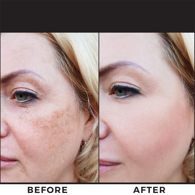 Private Label Dark Spot Removal Face Cream CBD Oil Drops Anti Spot Beauty Face Powerful Whitening Freckle Night Cream Vegan Dry