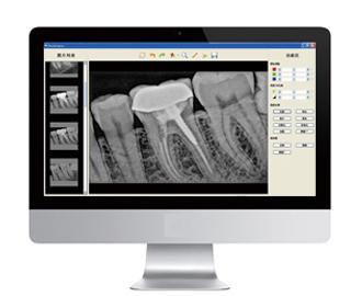 Рекламная акция! Портативная цифровая стоматологическая рентгеновская машина, датчик, другое стоматологическое оборудование