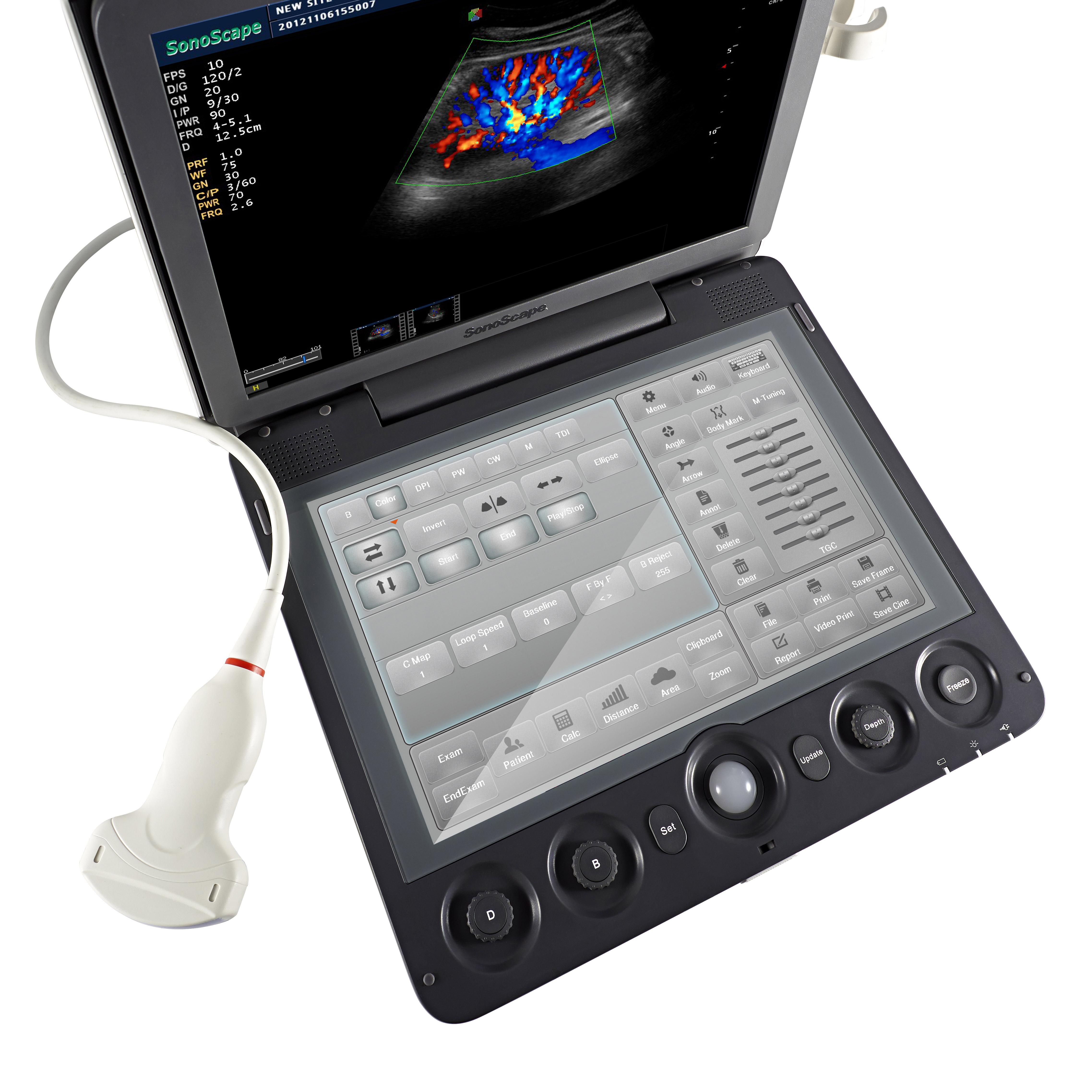 Sonoscape s9v, Цветной Допплер, Ветеринарный ультразвуковой аппарат