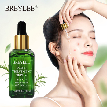 BREYLEE tea tree acne herbal treatment acne pimple remover serum anti acne