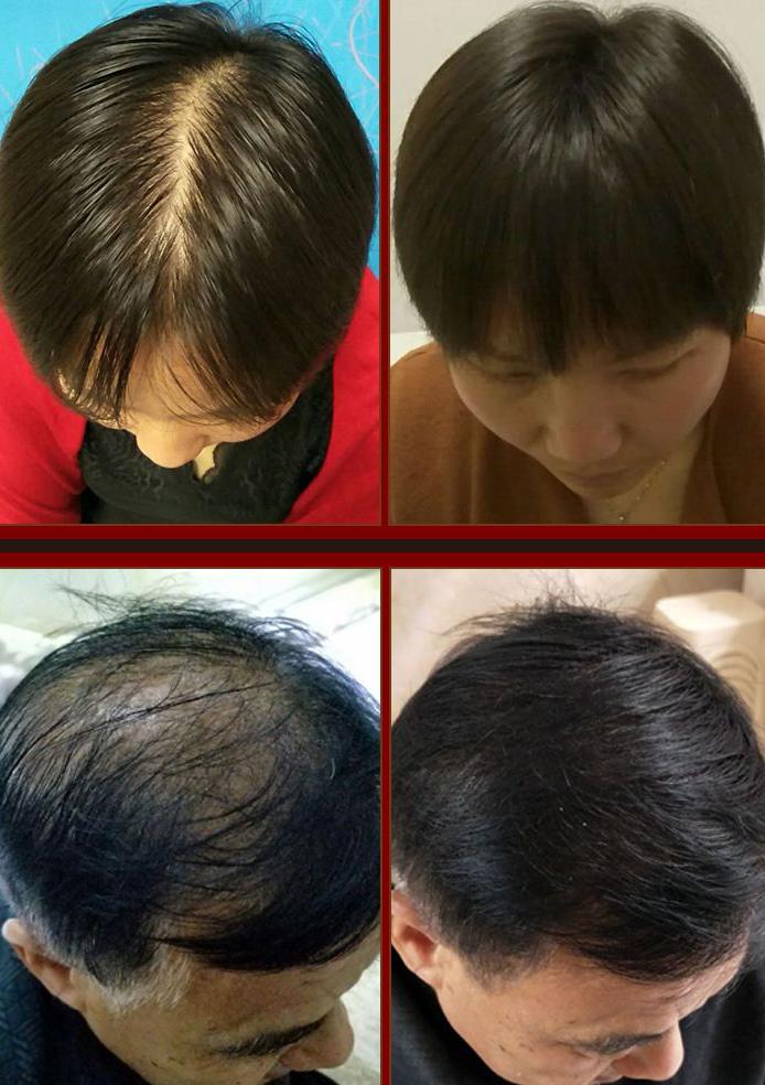 OEM/ODM натуральный спрей для роста волос, частная марка для женщин и мужчин, лечение роста волос