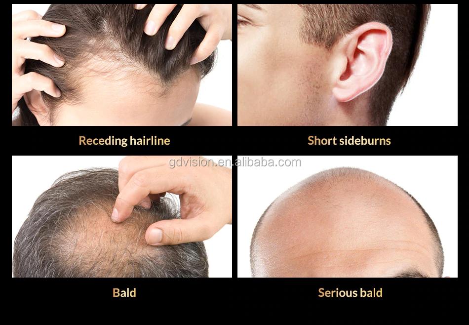 RESULTS GUARANTY IN 30 DAYS men hair loss treatment biotin hair growth serum oil