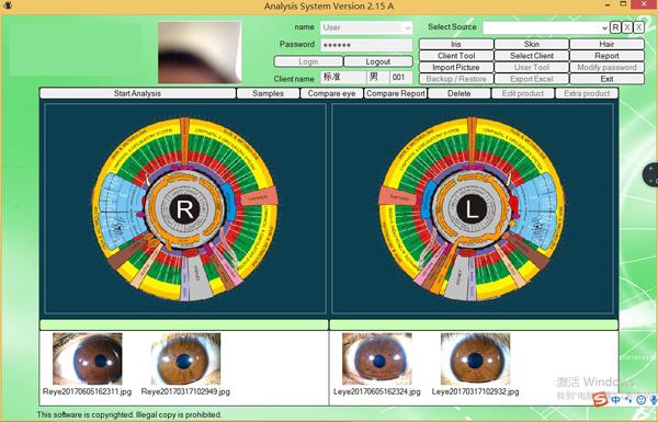Hot sale eye iriscope 12mp iridology with camera for beauty salon