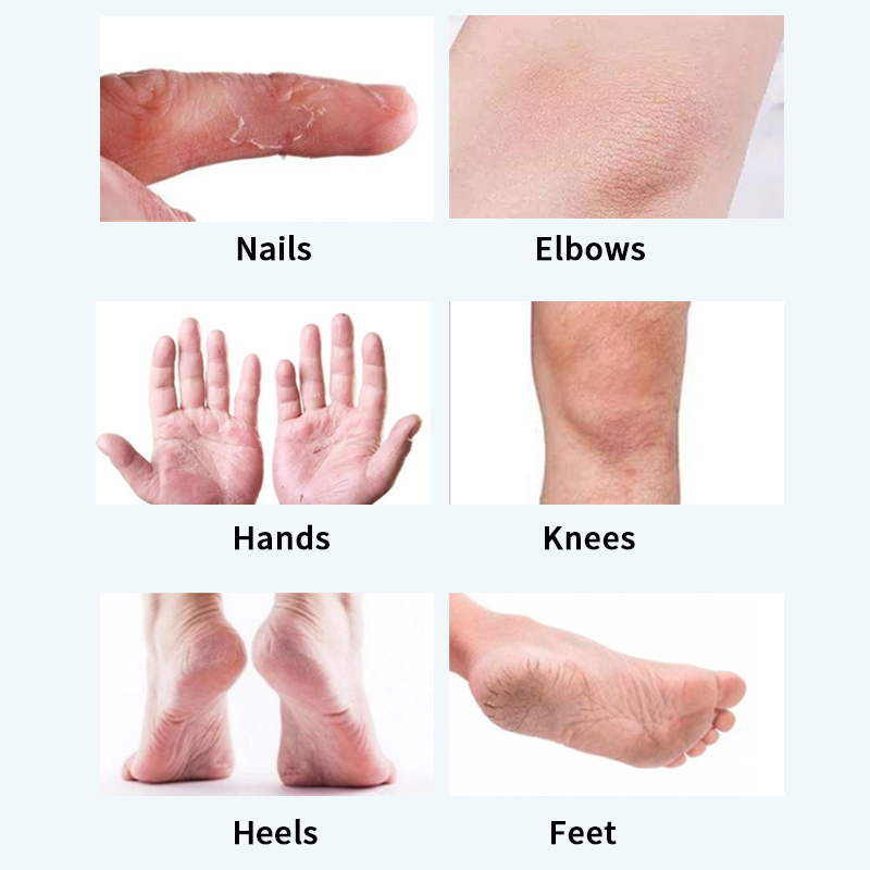 OEM Organic Hydrating For Hand Foot 10% Urea Cream foot skin care