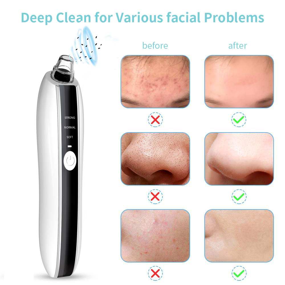 Hd Camera Painless Face Facial Spa Skin Visual Pore Cleaner Suction Blackhead Remover Vacuum