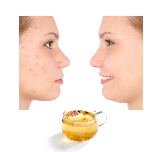 Private Label Rose Honeysuckle and Chrysanthemum Mixed Healthy Herbal Detox Tea Beauty Skin Tea - 4uTea   4uTea.com