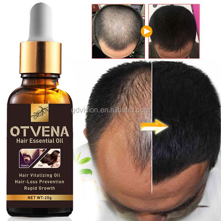 hair growth essence anti hair loss product OTVENA hair essential oil