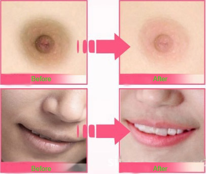 Long Pink Nipples 46
