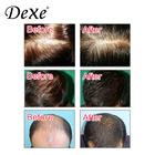 Hair Hair Thick 2020 Hot Top Most Sale Anti Hair Loss Hair Thick Shampoo Private Label OEM ODM
