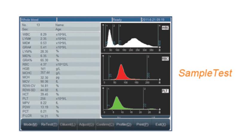 rayto rt 7600 auto hematology analyzer 3-part 20 parameters