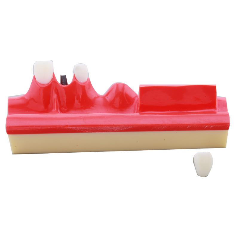 dental model for sale