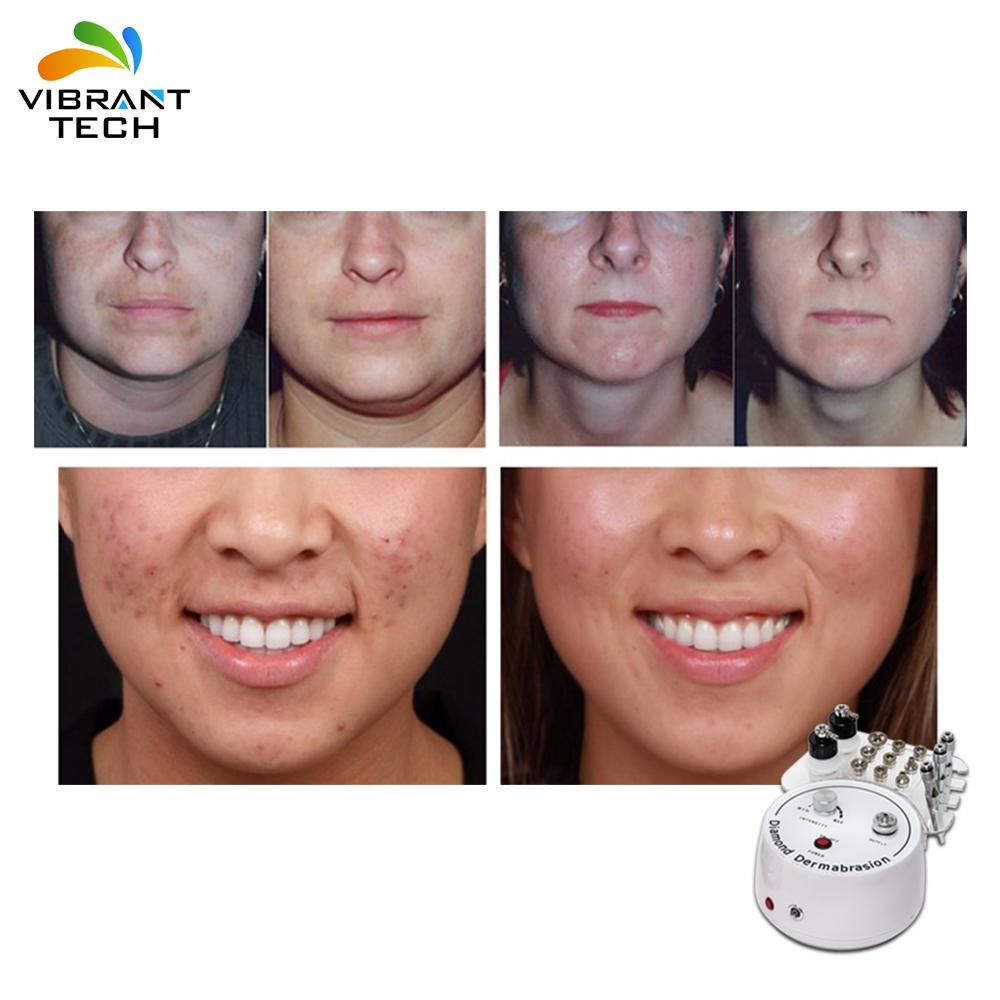 3 в 1 уход за кожей прессотерапия машина прямое производство принадлежности для ухода за кожей