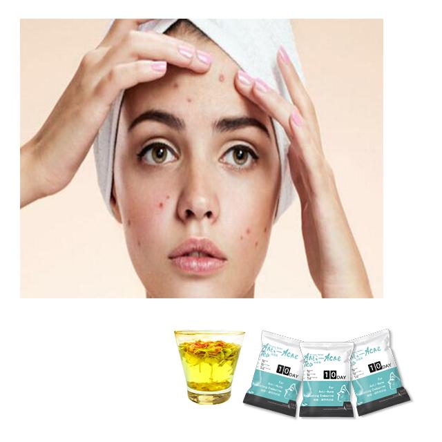 100% Natural Healthy Flower Tea Anti-constipation Anti-acne Tea Beauty Tea - 4uTea   4uTea.com