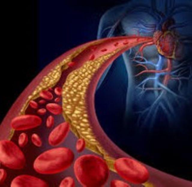 Natto Circulation High Blood Pressure Health Food Supplement