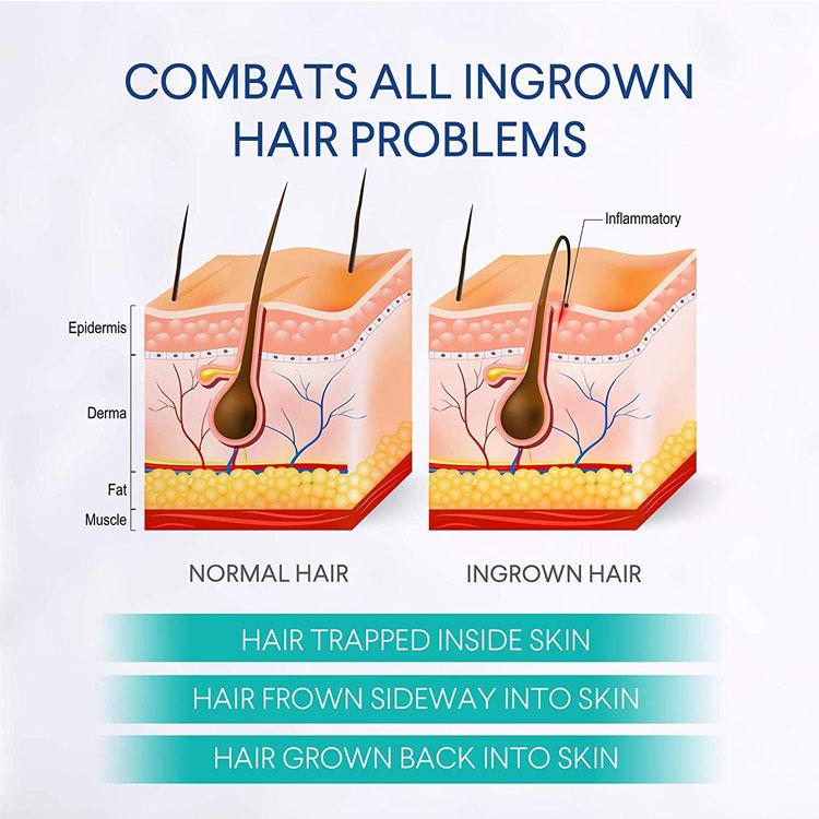 Stock Ingrown Hairs and Razor Burns, Dark Spot Corrector Skin Lightening Men After Shave Lotion Solution