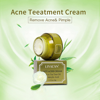 Green Tea Pimples Removal Beauty Skin Care Cream 2% Salicylic Acid Face Anti Acne Cream