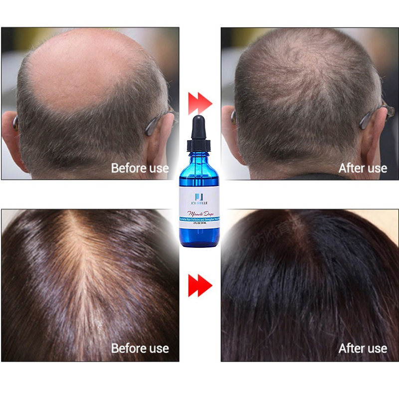Private Label Miracle Drops Hair Growth Oil Natural Regrowth Hair loss Care Product For Man Women Organic Hair Oil