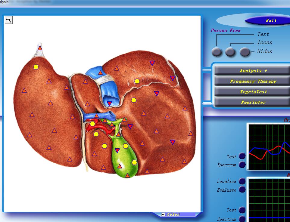 Оригинальный анализатор здоровья тела Diacom 3d nls с сертификатом ce