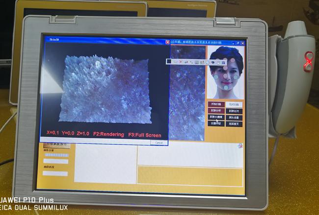 Ultra-thin touch screen 3d digital facial skin analyzer hot sale
