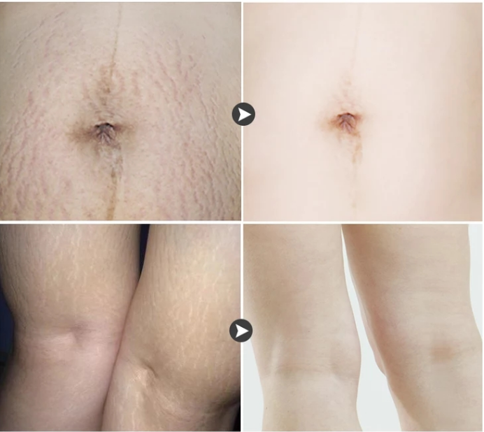 Крем для массажа для уменьшения морщин и растяжек во время беременности