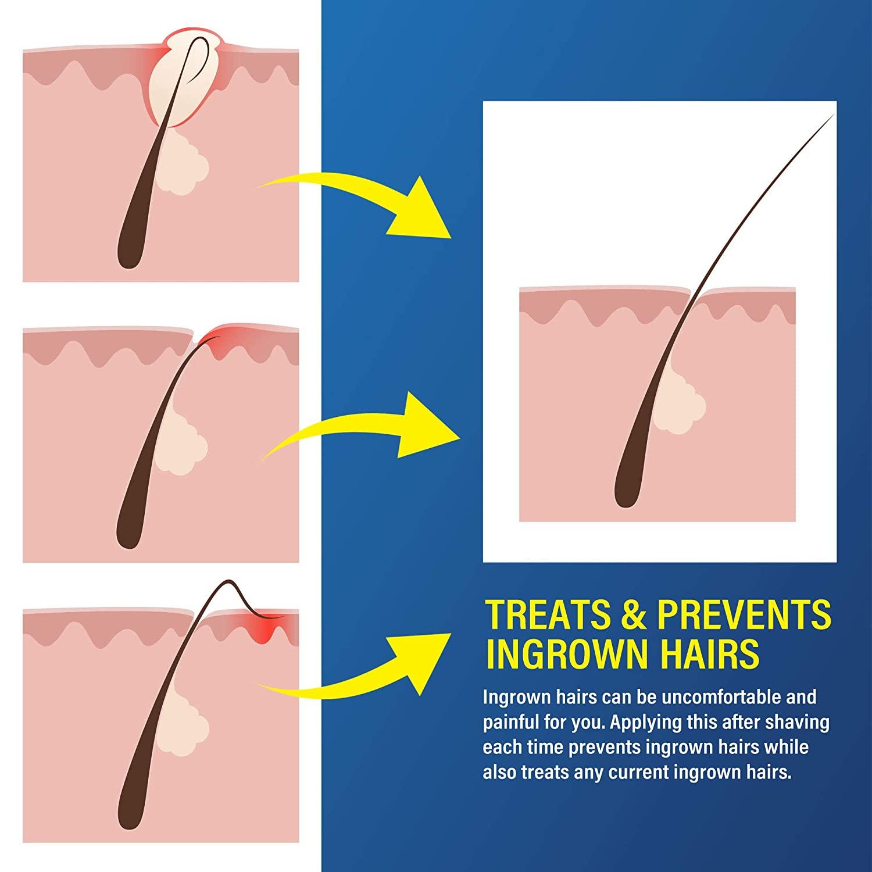 Men moisturizing nourishing ingrown hair treatment after shave solution roll