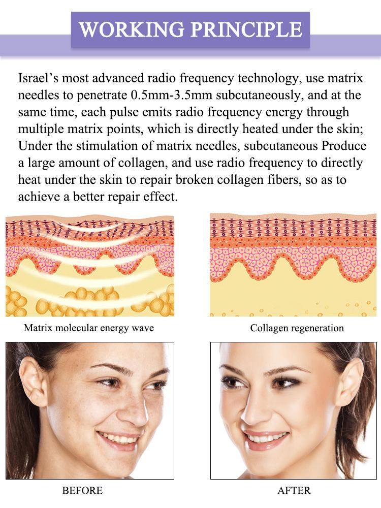 Vela gold rf fractional rf Micro Needling Lutronic Infini Radiofrequency SkinTightening thermagic flx cpt